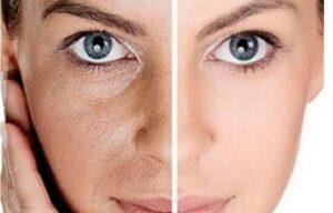 جوانسازی سریع پوست با هیدرودرم