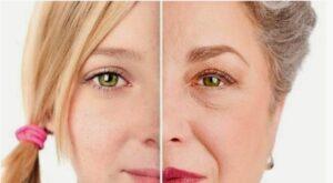 سفت شدن پوست با دستگاه هیدرودرم
