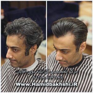 بوتاکس مو در مردان
